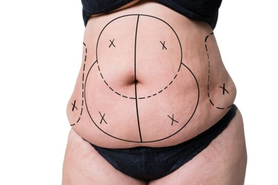 Does Liposuction Leave Scars