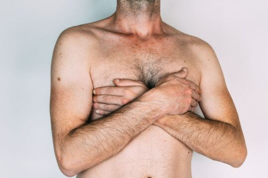Does Weight Loss Help Get Rid Of Gynecomastia?